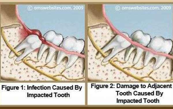 Why Are My Wisdom Teeth 64 License Keygen Professional Download